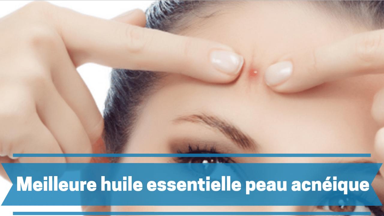 meilleure huile essentielle pour la peau acnéique