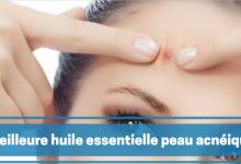 meilleure huile essentielle pour peau acnéique