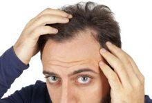 Photo de Quel budget prévoir pour une greffe de cheveux ?